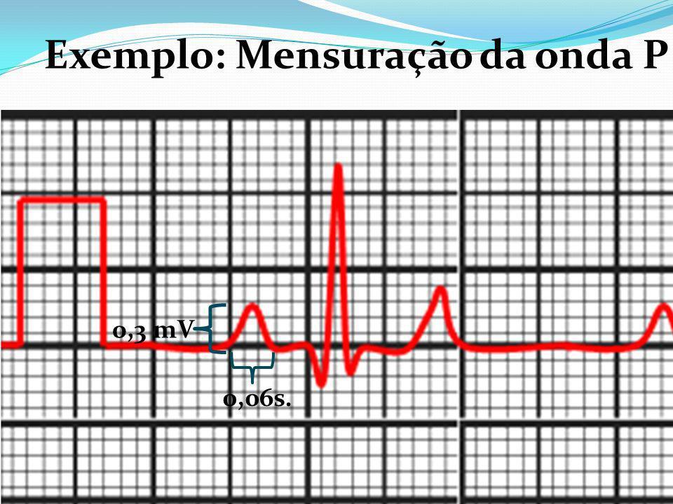 0,3 mV 0,06s. Exemplo: Mensuração da onda P