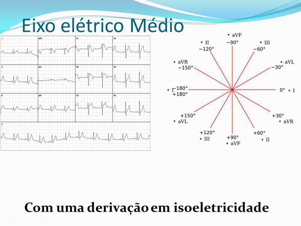 Com uma derivação em isoeletricidade Eixo elétrico Médio