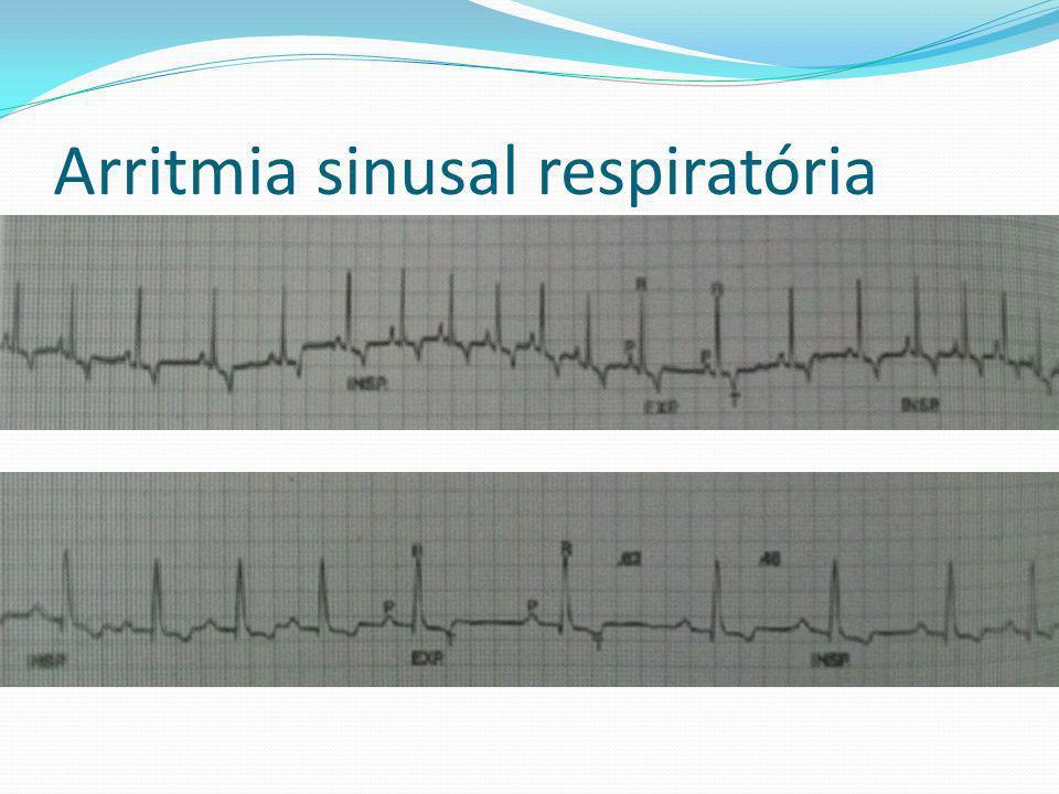 Arritmia sinusal respiratória