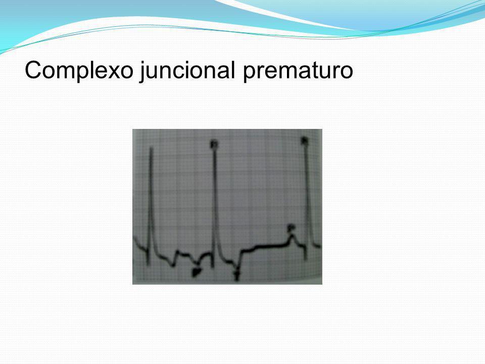 Complexo juncional prematuro