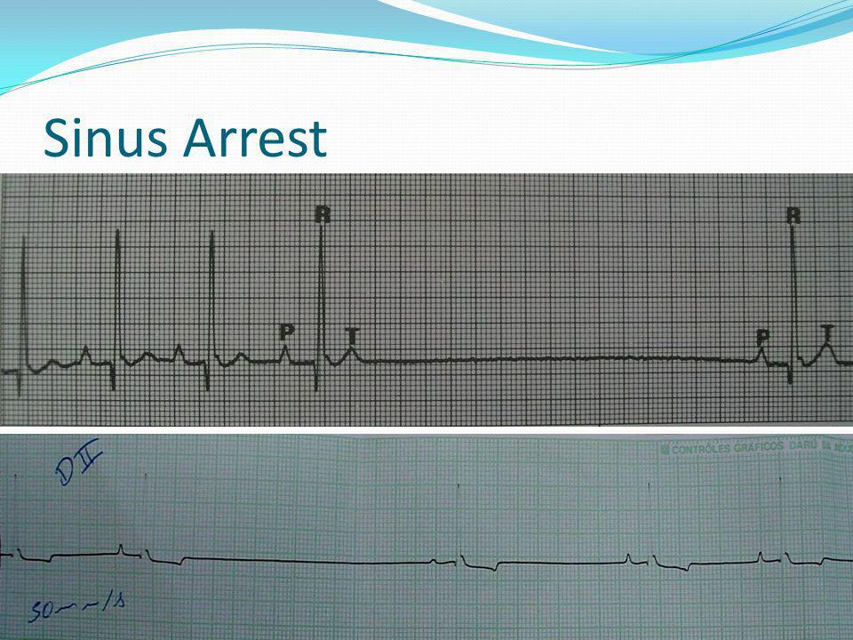 Sinus Arrest