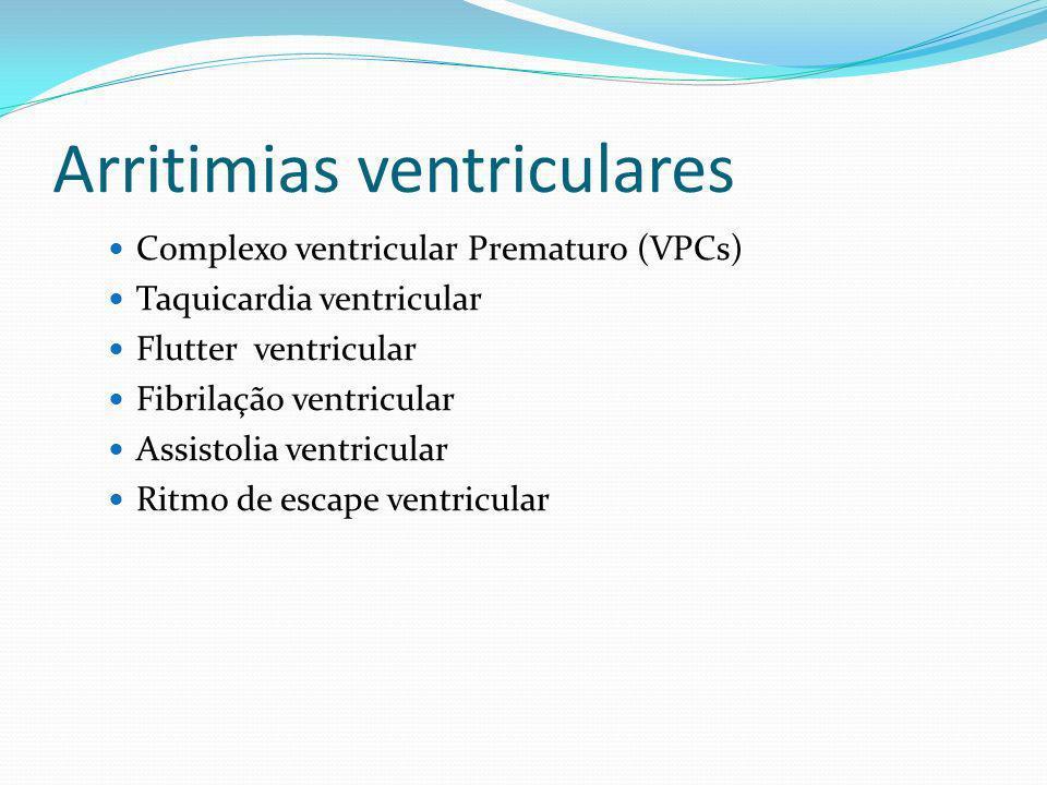 Arritimias ventriculares Complexo ventricular Prematuro (VPCs) Taquicardia ventricular Flutter ventricular Fibrilação ventricular Assistolia ventricul