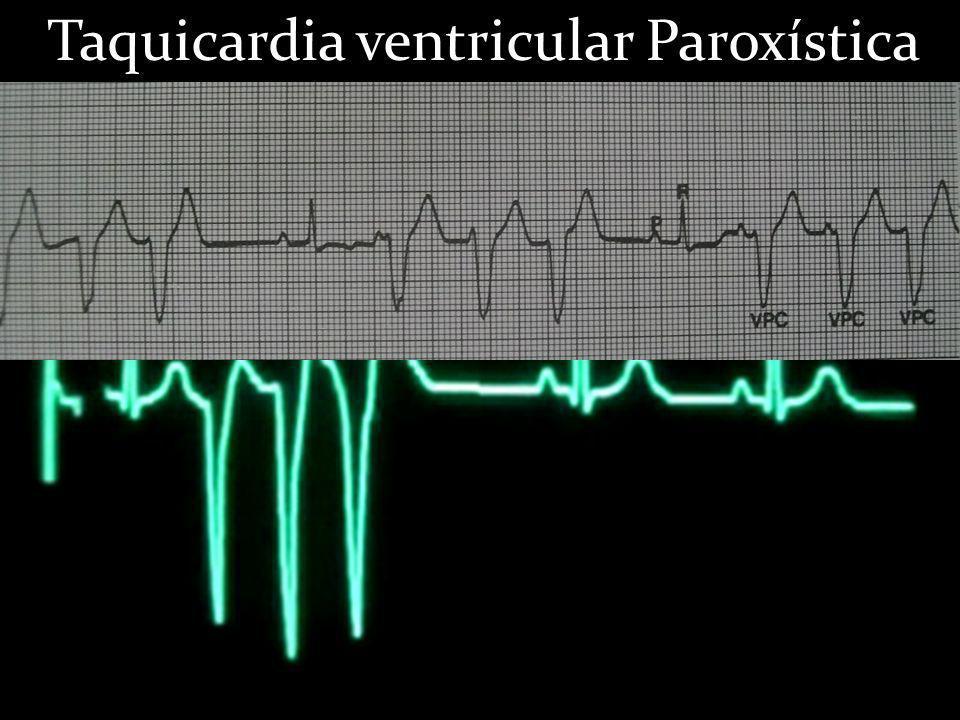 Taquicardia ventricular Paroxística