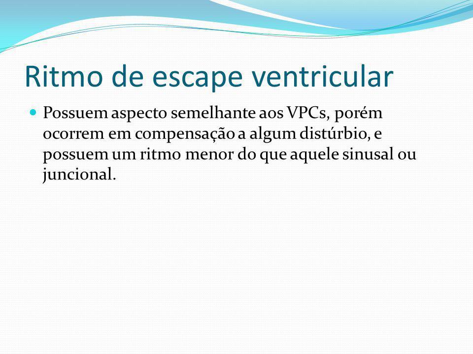 Ritmo de escape ventricular Possuem aspecto semelhante aos VPCs, porém ocorrem em compensação a algum distúrbio, e possuem um ritmo menor do que aquel
