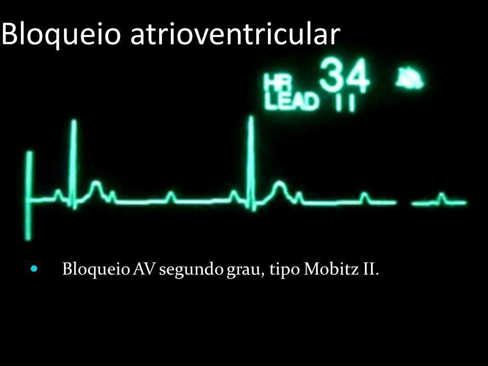 Bloqueio atrioventricular Bloqueio AV segundo grau, tipo Mobitz II.