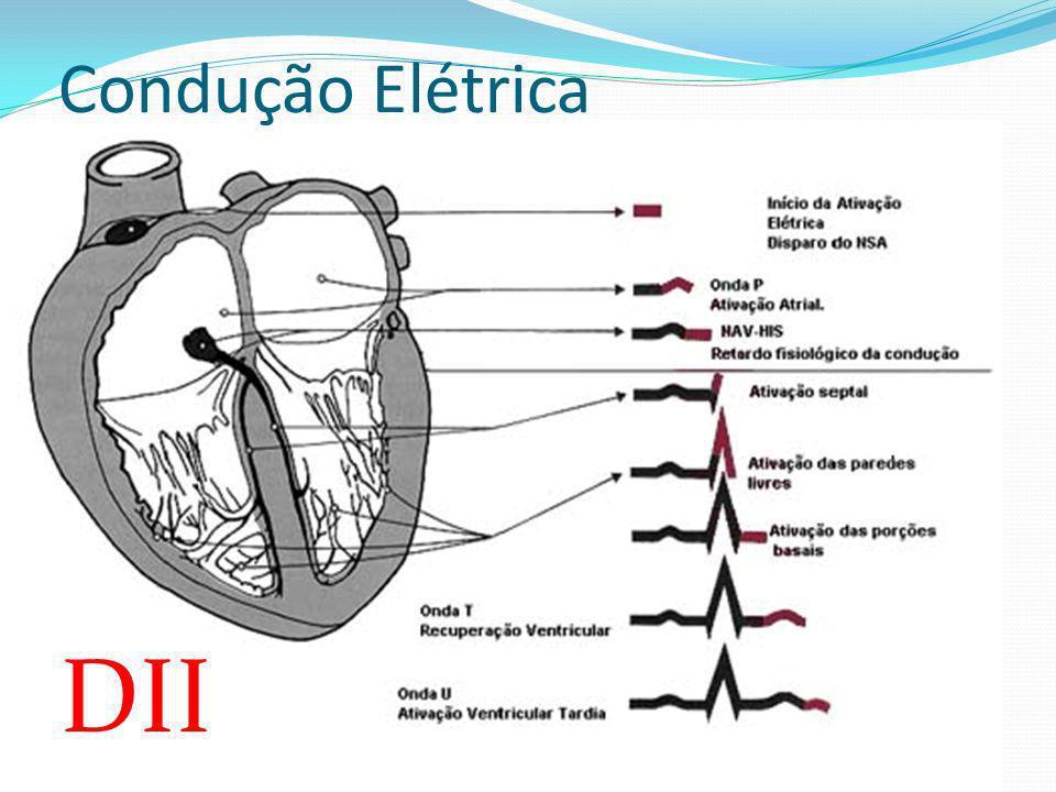 Complexo QRS Onda s (3ª fase de despolarização ventricular) A despolarização se move no sentido oposto ao eletrodo explorador (+).