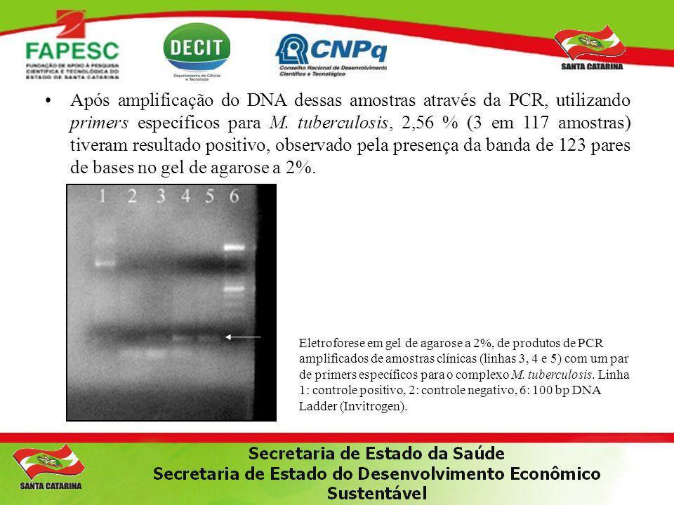Após amplificação do DNA dessas amostras através da PCR, utilizando primers específicos para M. tuberculosis, 2,56 % (3 em 117 amostras) tiveram resul