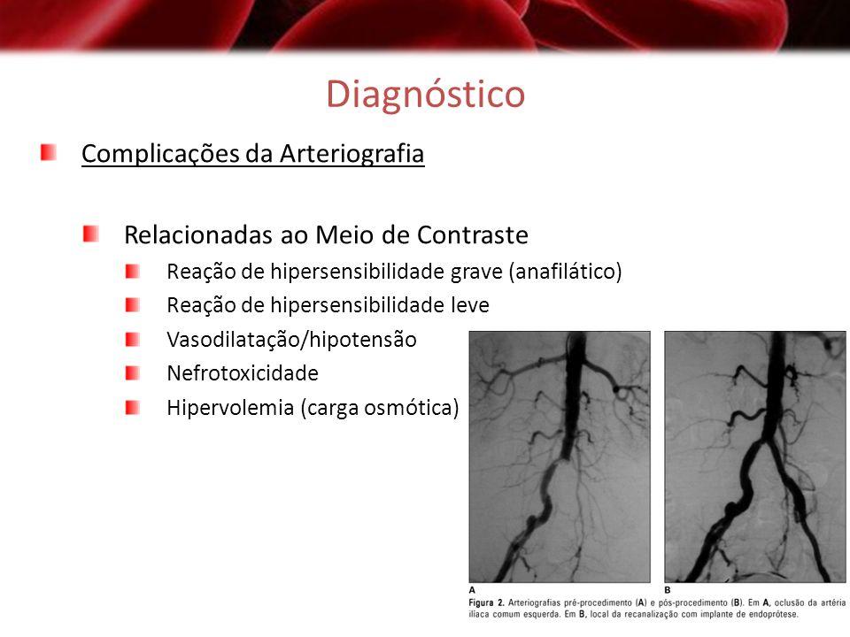 Diagnóstico Complicações da Arteriografia Relacionadas ao Meio de Contraste Reação de hipersensibilidade grave (anafilático) Reação de hipersensibilid