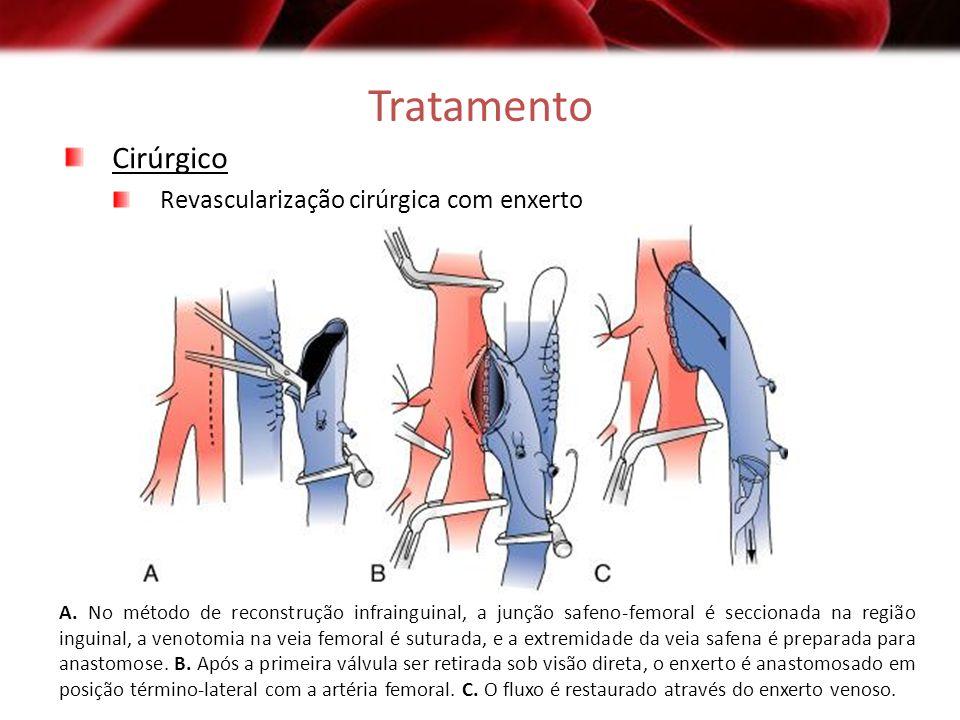 Tratamento Cirúrgico Revascularização cirúrgica com enxerto A. No método de reconstrução infrainguinal, a junção safeno-femoral é seccionada na região