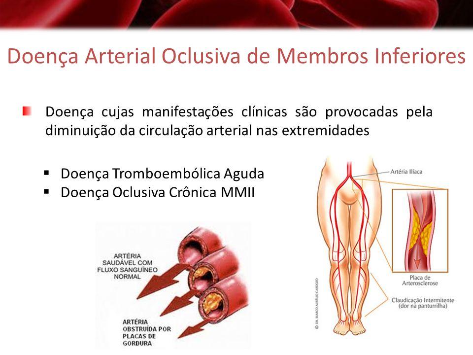 Doença Arterial Oclusiva de Membros Inferiores Doença cujas manifestações clínicas são provocadas pela diminuição da circulação arterial nas extremida