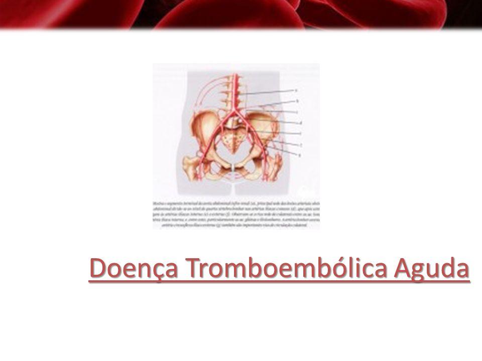 Doença Tromboembólica Aguda