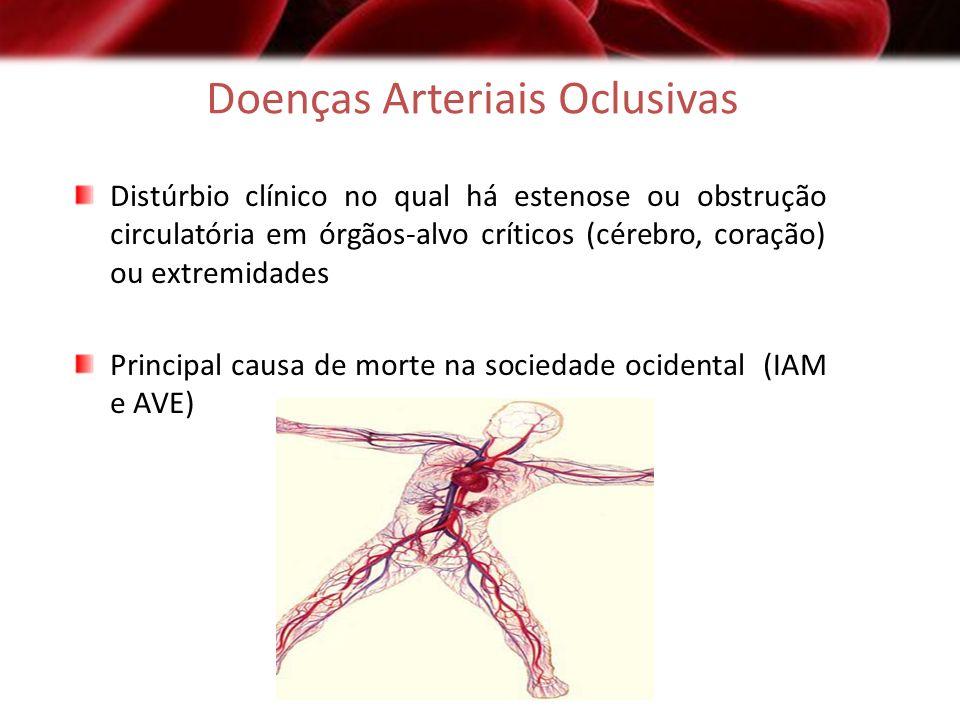 Doenças Arteriais Oclusivas Distúrbio clínico no qual há estenose ou obstrução circulatória em órgãos-alvo críticos (cérebro, coração) ou extremidades