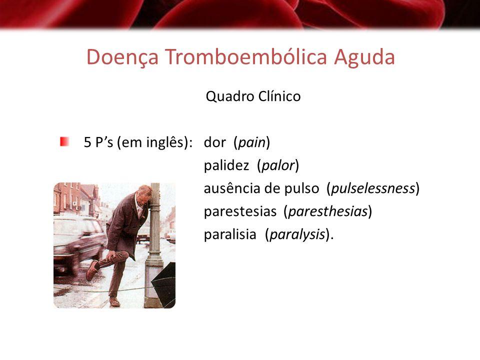 Doença Tromboembólica Aguda Quadro Clínico 5 Ps (em inglês): dor (pain) palidez (palor) ausência de pulso (pulselessness) parestesias (paresthesias) p