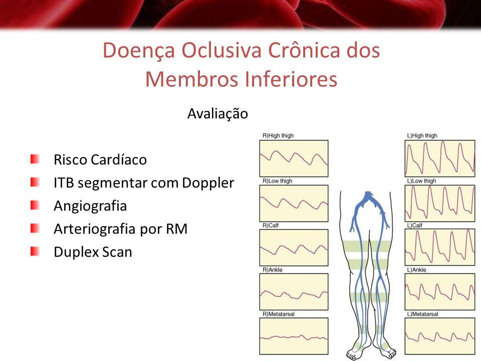 Doença Oclusiva Crônica dos Membros Inferiores Avaliação Risco Cardíaco ITB segmentar com Doppler Angiografia Arteriografia por RM Duplex Scan