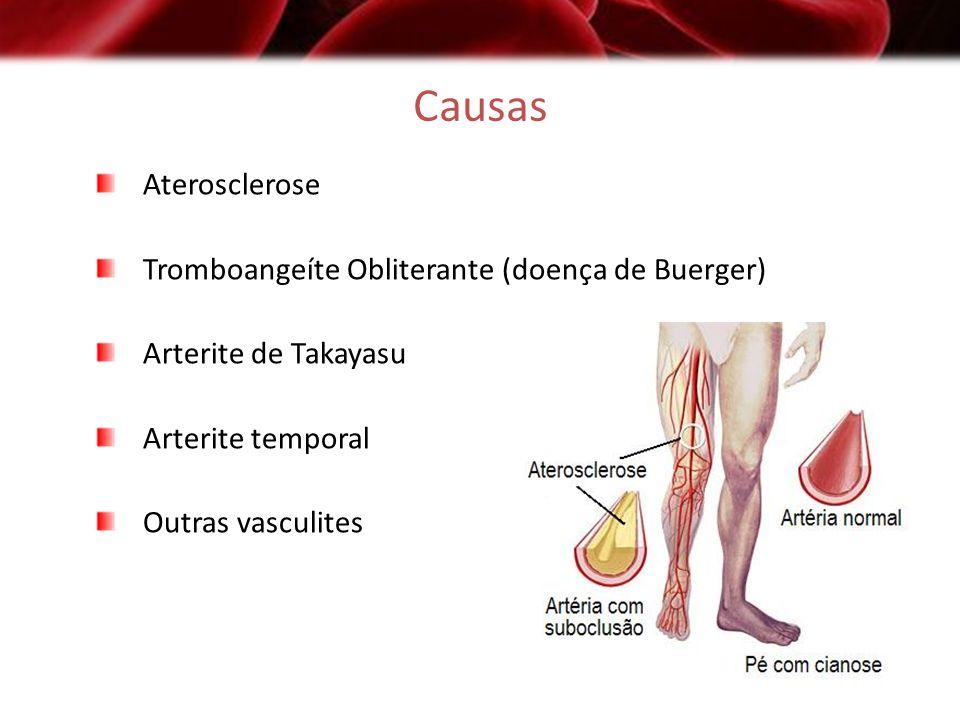 Arteriosclerose Três variantes morfológicas: Aterosclerose: presença de ateromas nas artérias de médio e grande calibre; Arterioloesclerose: proliferação fibromuscular ou endotelial comprometendo a luz e atingindo as pequenas artérias e arteríolas; Esclerose calcificante da média: fibrose e calcificação da camada média das artérias musculares e também das grandes artérias