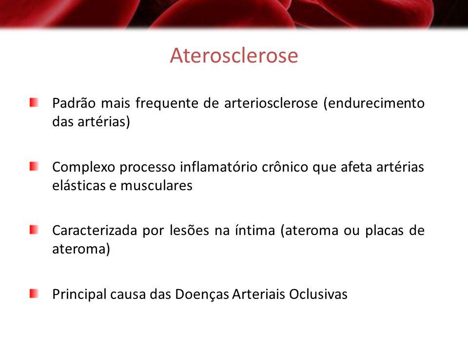Aterosclerose Padrão mais frequente de arteriosclerose (endurecimento das artérias) Complexo processo inflamatório crônico que afeta artérias elástica