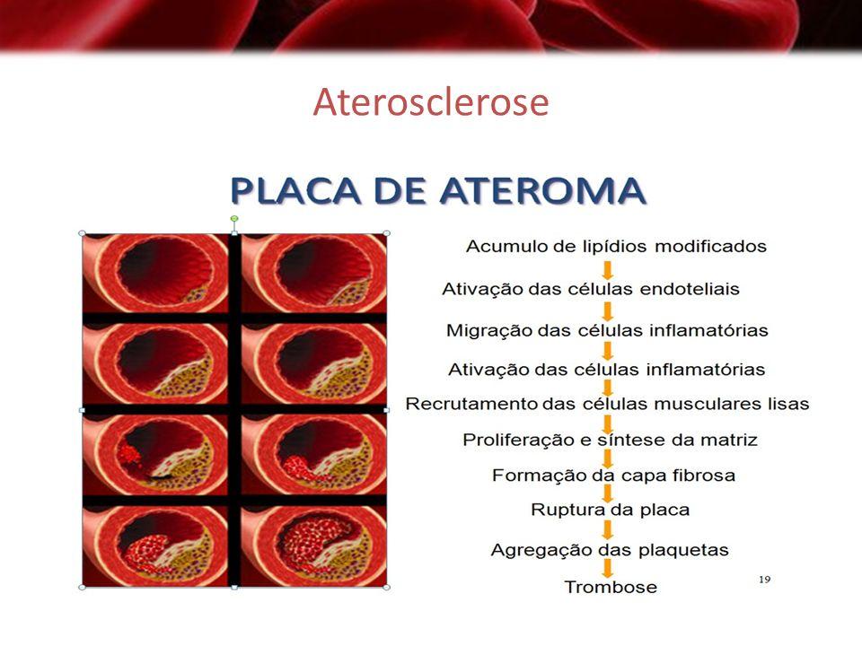 Fatores de Risco para Aterosclerose Firmemente Estabelecidos 1.Hipercolesterolemia 2.Tabagismo 3.Hipertensão Arterial Sistêmica 4.Diabetes Melito Fatores Relativos 1.Idade avançada 2.Gênero masculino 3.Hipertrigliceridemia 4.Vida sedentária 5.História familiar