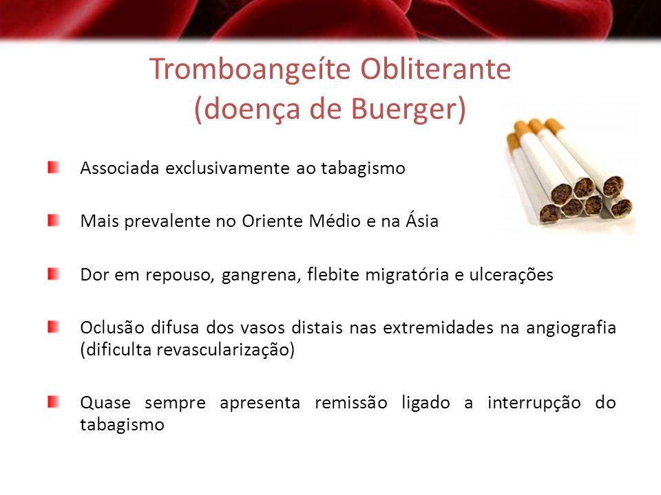 Tromboangeíte Obliterante (doença de Buerger) Associada exclusivamente ao tabagismo Mais prevalente no Oriente Médio e na Ásia Dor em repouso, gangren