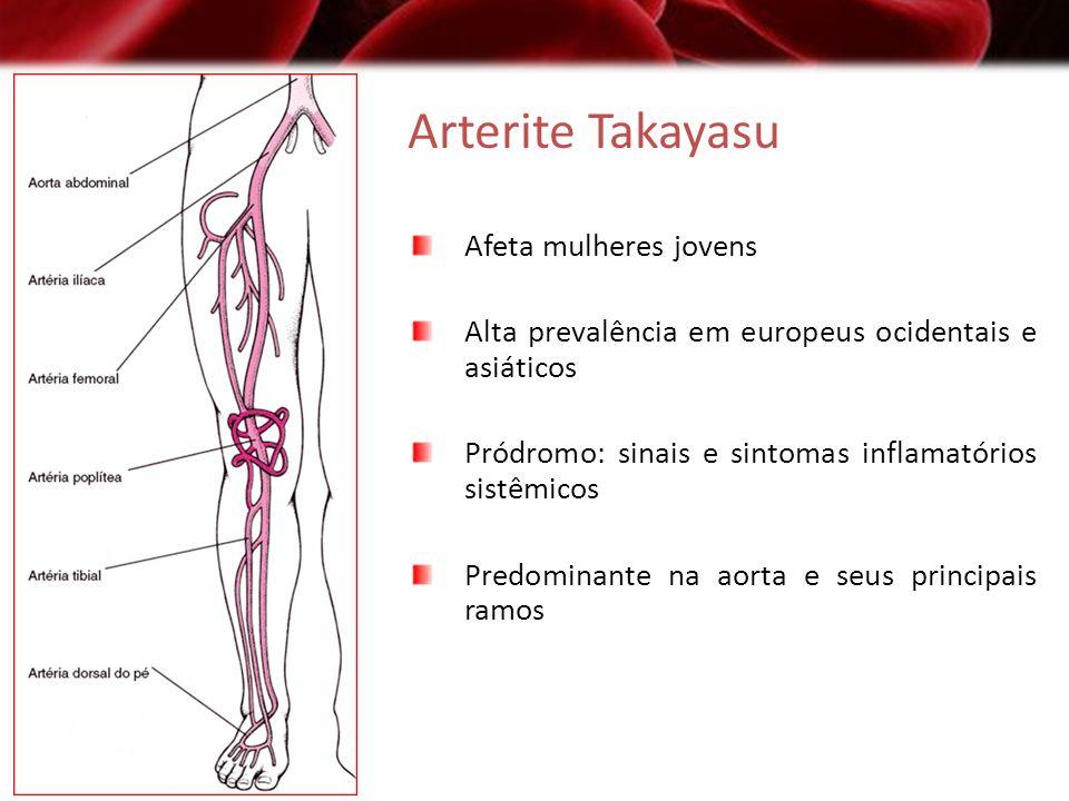 Arterite Takayasu Afeta mulheres jovens Alta prevalência em europeus ocidentais e asiáticos Pródromo: sinais e sintomas inflamatórios sistêmicos Predo