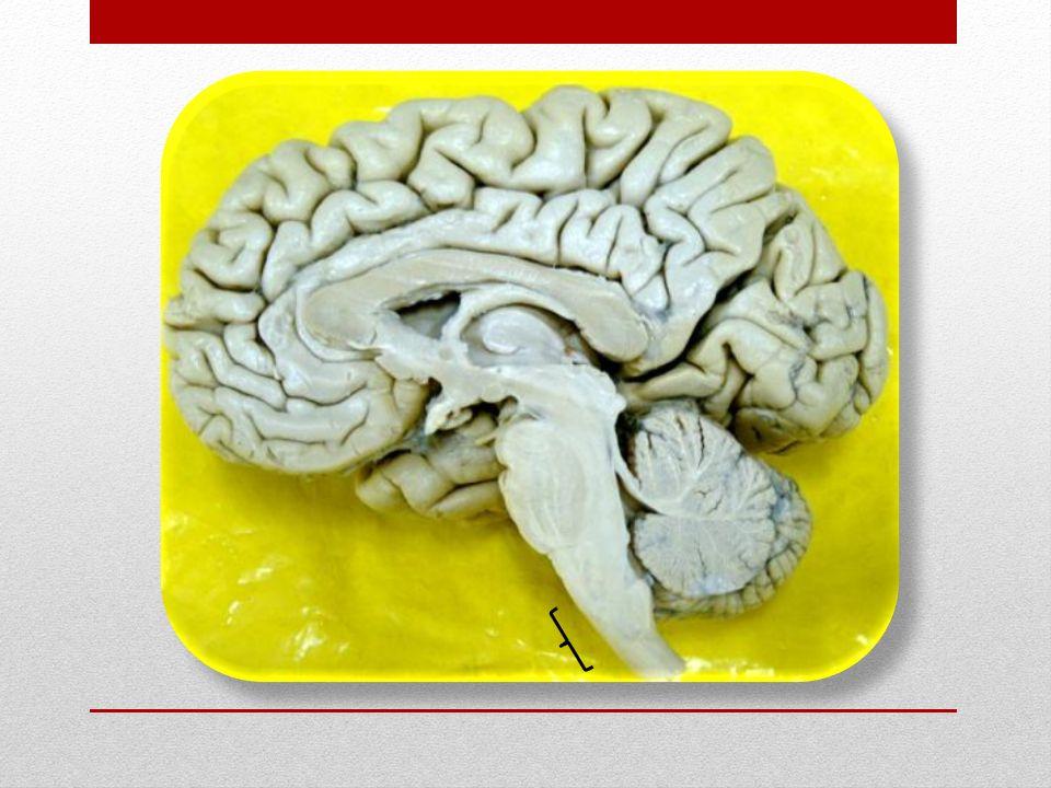 Ventrículos encefálicos Nas transformações sofridas pelos ventrículos primordiais, o tubo neural primitivo permanece e apresenta-se dilatada em algumas das subdivisões daquelas vesículas, constituindo os chamados ventrículos que se comunicam entre si: o Telencéfalo: corresponde aos ventrículos laterais (direito e esquerdo).