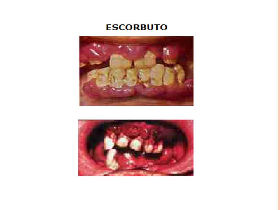 V ITAMINAS H IDROSSOLÚVEIS : Tiamina (B1): Hidrossolúvel e levemente estável.