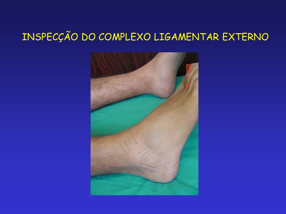 INSPECÇÃO DO COMPLEXO LIGAMENTAR EXTERNO