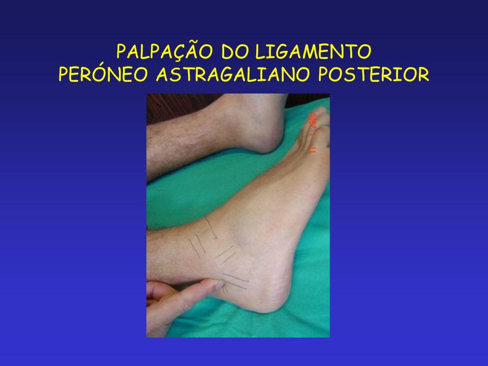 PALPAÇÃO DO LIGAMENTO PERÓNEO ASTRAGALIANO POSTERIOR
