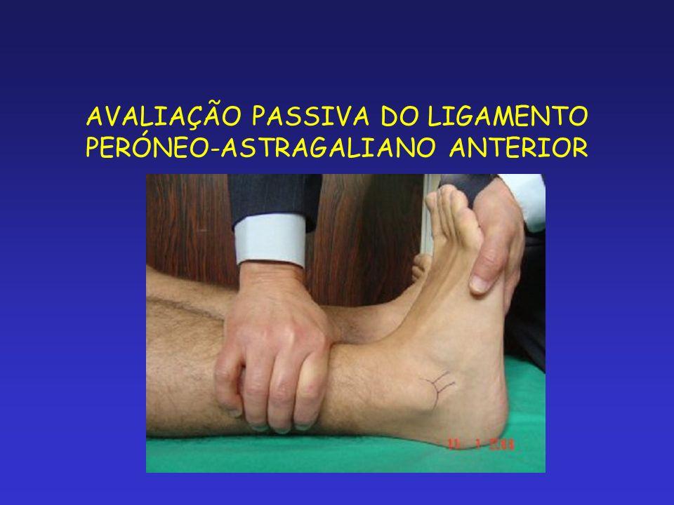 AVALIAÇÃO PASSIVA DO LIGAMENTO PERÓNEO-ASTRAGALIANO ANTERIOR