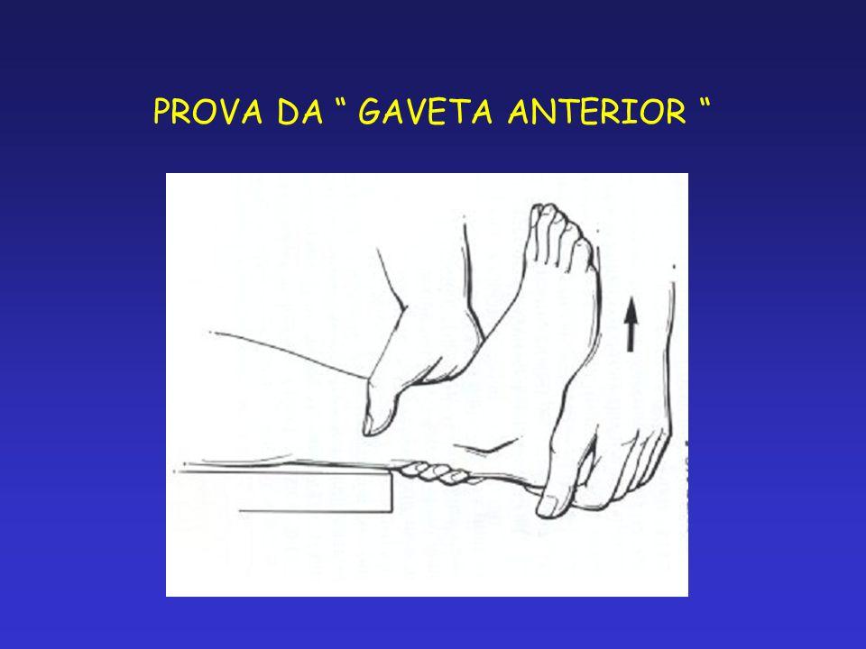 PROVA DA GAVETA ANTERIOR