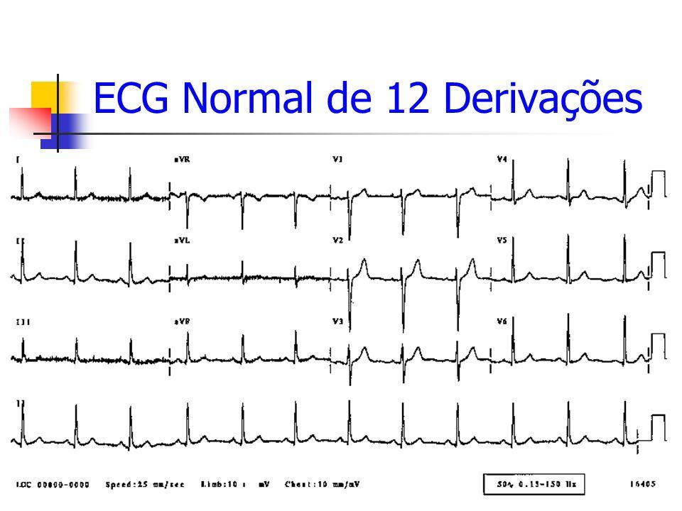 ECG Normal de 12 Derivações