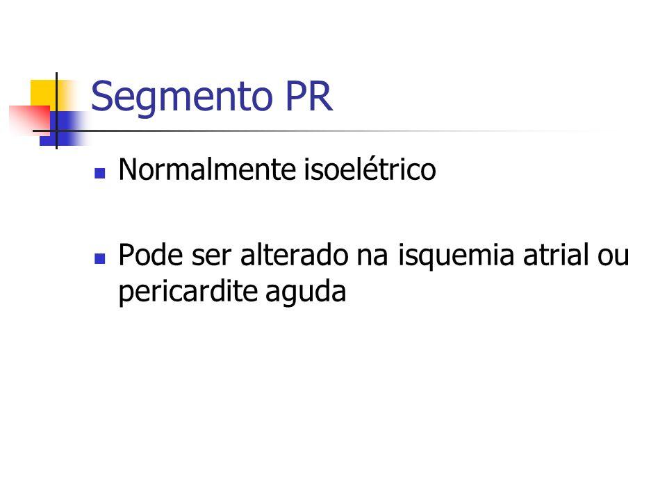 Segmento PR Normalmente isoelétrico Pode ser alterado na isquemia atrial ou pericardite aguda