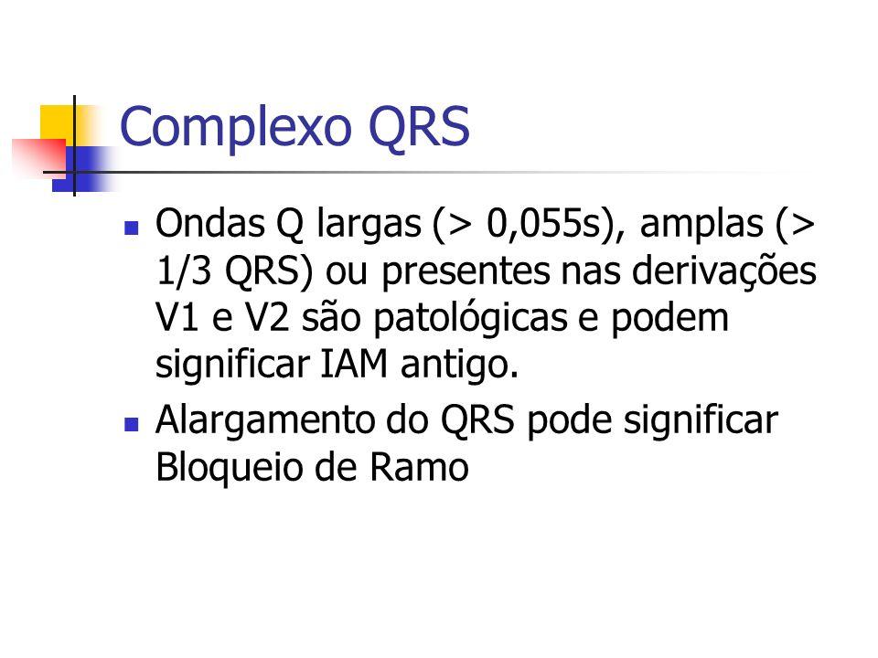 Complexo QRS Ondas Q largas (> 0,055s), amplas (> 1/3 QRS) ou presentes nas derivações V1 e V2 são patológicas e podem significar IAM antigo. Alargame