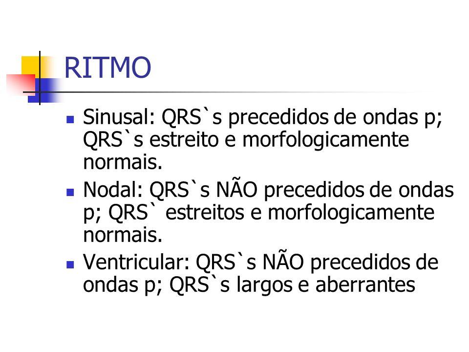 RITMO Sinusal: QRS`s precedidos de ondas p; QRS`s estreito e morfologicamente normais. Nodal: QRS`s NÃO precedidos de ondas p; QRS` estreitos e morfol