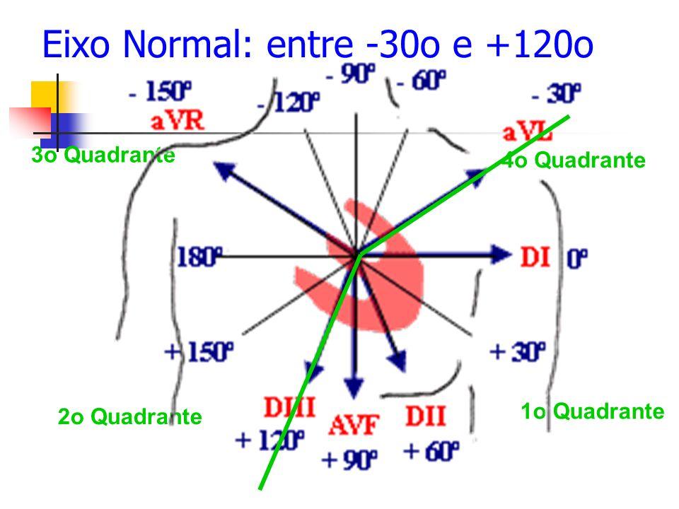 1o Quadrante 2o Quadrante 3o Quadrante 4o Quadrante Eixo Normal: entre -30o e +120o