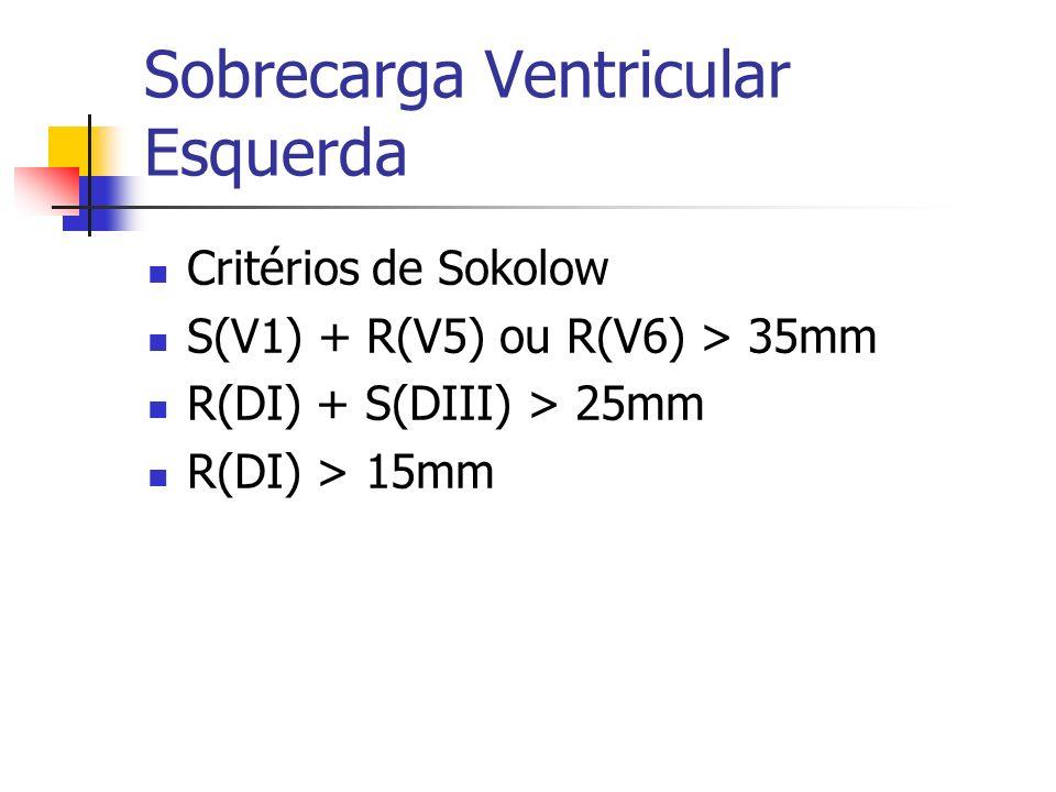 Sobrecarga Ventricular Esquerda Critérios de Sokolow S(V1) + R(V5) ou R(V6) > 35mm R(DI) + S(DIII) > 25mm R(DI) > 15mm
