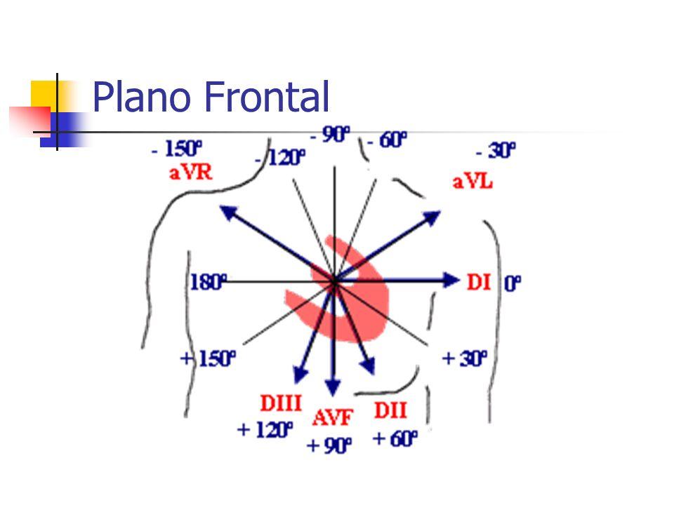 DERIVAÇÕES Precordiais: V1 a V6 Determinam o plano horizontal do coração