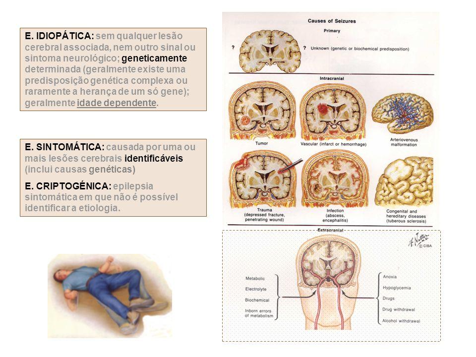 E. IDIOPÁTICA: sem qualquer lesão cerebral associada, nem outro sinal ou sintoma neurológico; geneticamente determinada (geralmente existe uma predisp