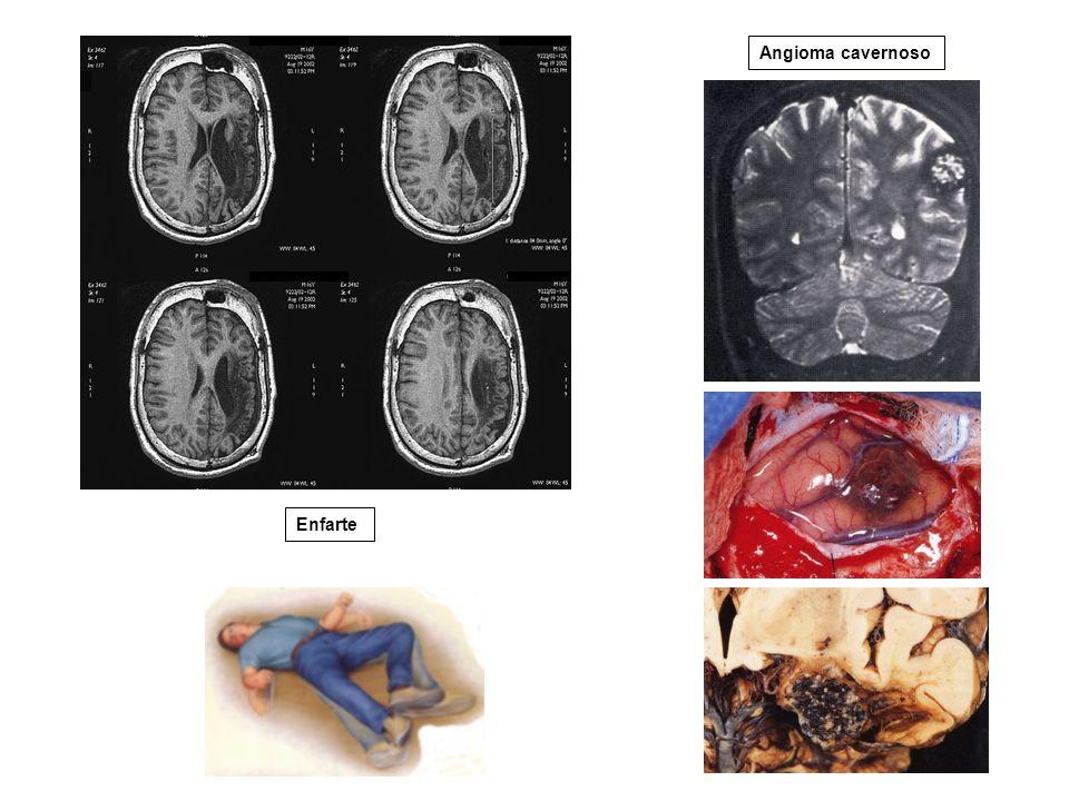 Enfarte Angioma cavernoso