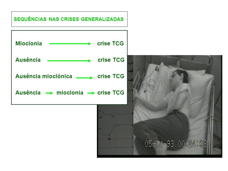 SEQUÊNCIAS NAS CRISES GENERALIZADAS Mioclonia crise TCG Ausência crise TCG Ausência mioclónica crise TCG Ausência mioclonia crise TCG