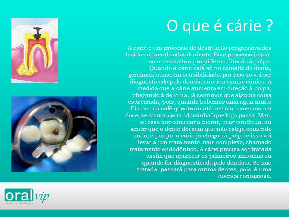 O que é cárie ? A cárie é um processo de destruição progressiva dos tecidos mineralizados do dente. Este processo inicia- se no esmalte e progride em