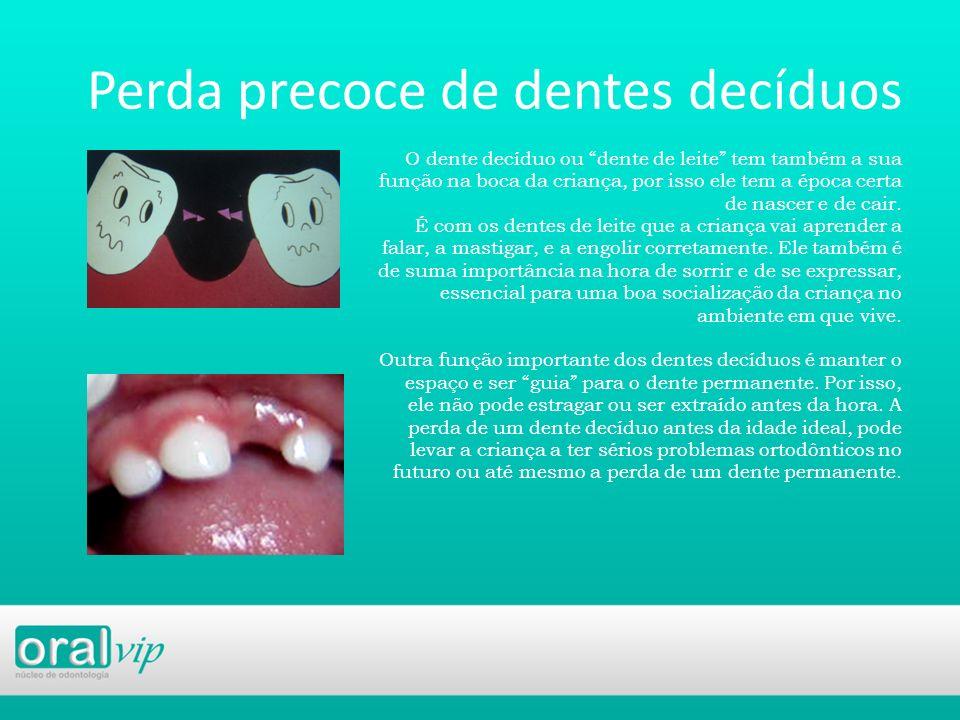 Perda precoce de dentes decíduos O dente decíduo ou dente de leite tem também a sua função na boca da criança, por isso ele tem a época certa de nasce