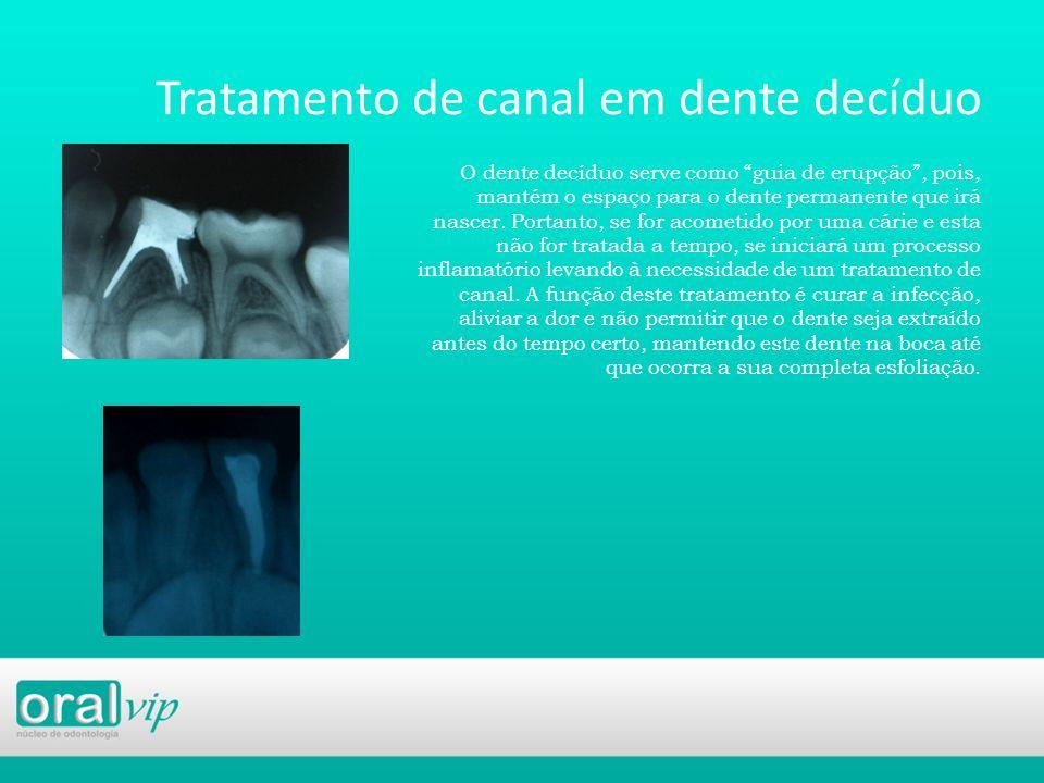 Tratamento de canal em dente decíduo O dente decíduo serve como guia de erupção, pois, mantém o espaço para o dente permanente que irá nascer. Portant