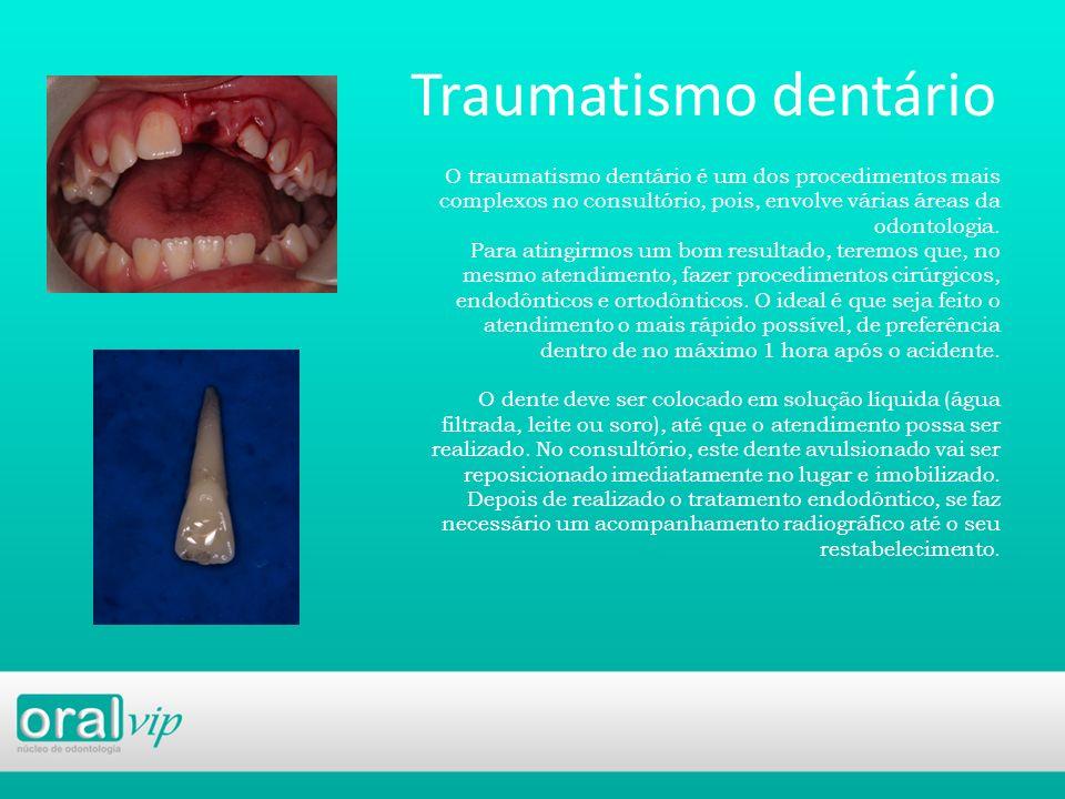 Traumatismo dentário O traumatismo dentário é um dos procedimentos mais complexos no consultório, pois, envolve várias áreas da odontologia. Para atin