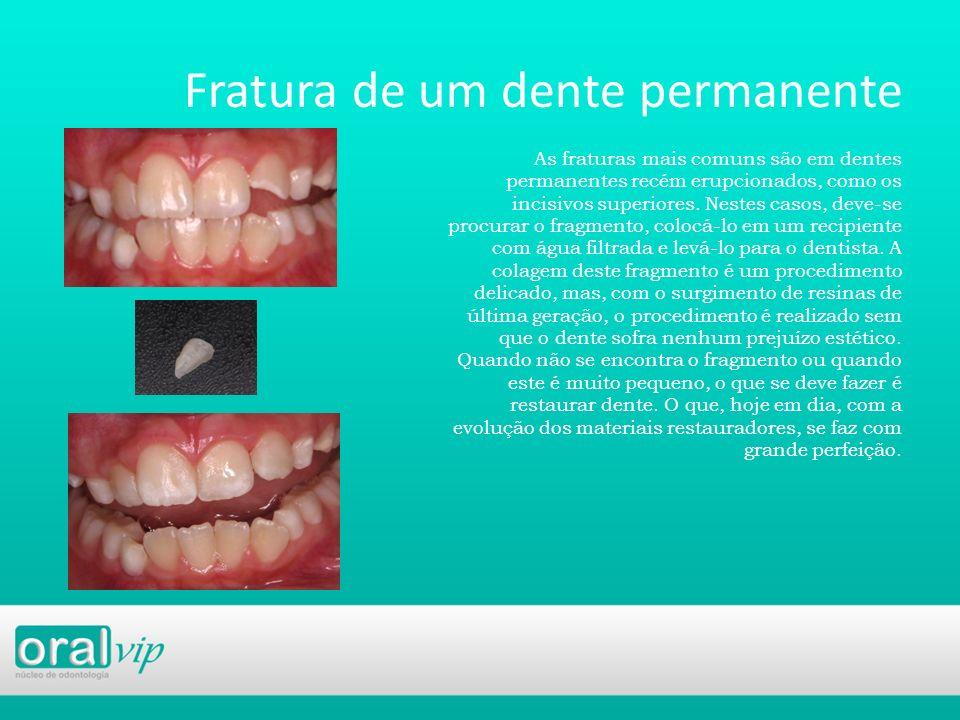 Fratura de um dente permanente As fraturas mais comuns são em dentes permanentes recém erupcionados, como os incisivos superiores. Nestes casos, deve-