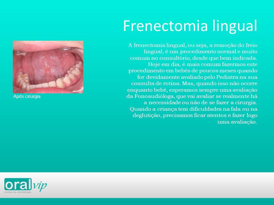 Frenectomia lingual Após cirurgia A frenectomia lingual, ou seja, a remoção do freio lingual, é um procedimento normal e muito comum no consultório, d