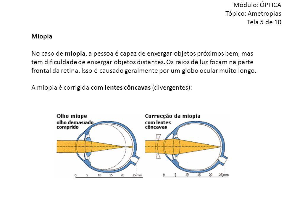Miopia No caso de miopia, a pessoa é capaz de enxergar objetos próximos bem, mas tem dificuldade de enxergar objetos distantes. Os raios de luz focam