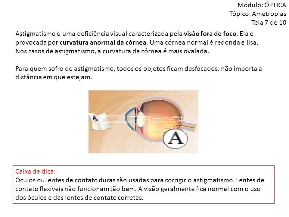Módulo: ÓPTICA Tópico: Ametropias Tela 7 de 10 Astigmatismo é uma deficiência visual caracterizada pela visão fora de foco. Ela é provocada por curvat