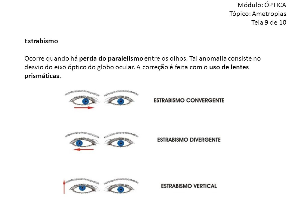 Estrabismo Ocorre quando há perda do paralelismo entre os olhos. Tal anomalia consiste no desvio do eixo óptico do globo ocular. A correção é feita co