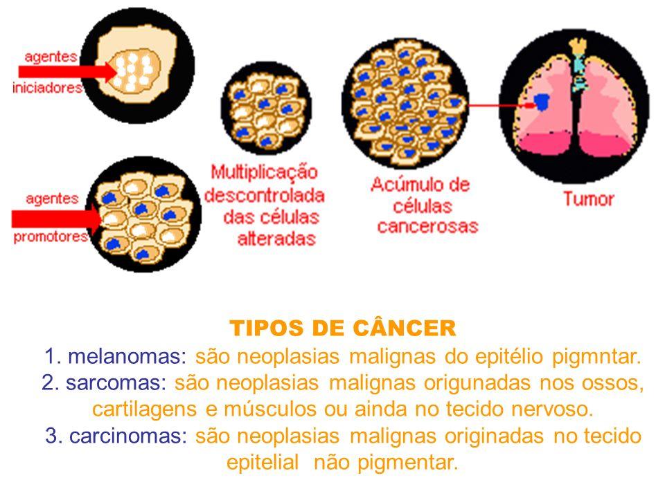 TIPOS DE CÂNCER 1.melanomas: são neoplasias malignas do epitélio pigmntar.