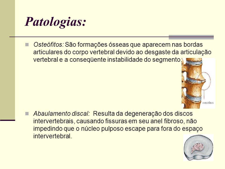 Patologias: Osteófitos: São formações ósseas que aparecem nas bordas articulares do corpo vertebral devido ao desgaste da articulação vertebral e a co